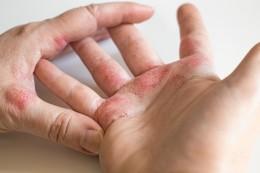 Wie neue Therapien bei Neurodermitis helfen sollen